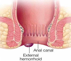 external hemorrhoids images