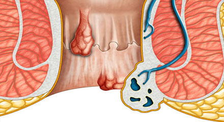 laser hemorrhoidectomy